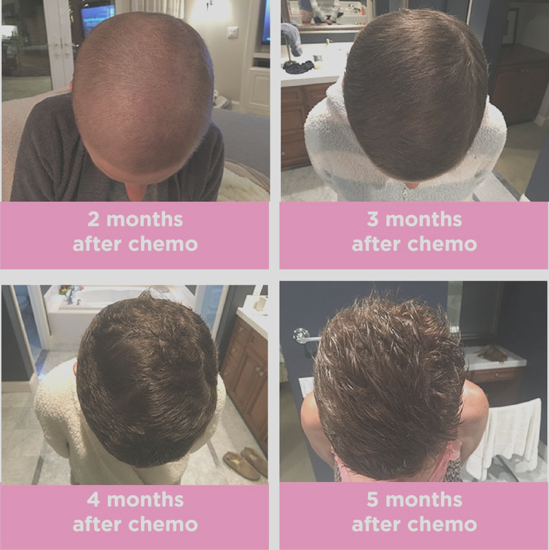 hair dye after chemo