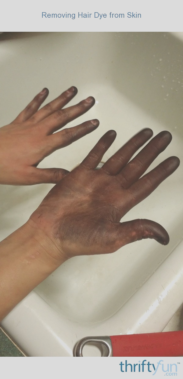 Removing Hair Dye from Skin 1
