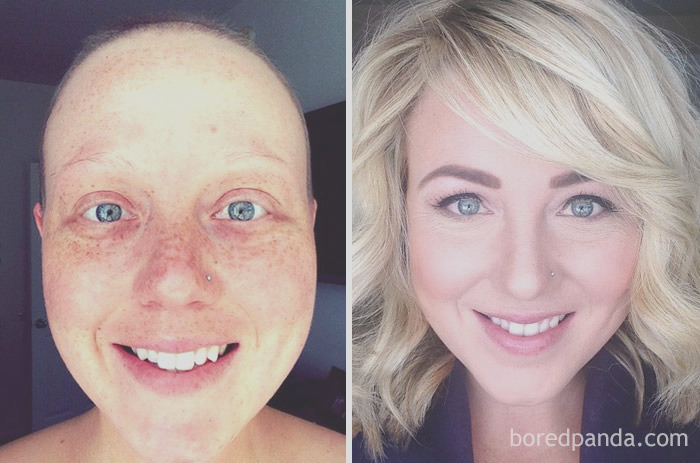 before after beating cancer